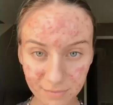 Comment garder votre peau jeune même lorsque vous ne l'êtes pas